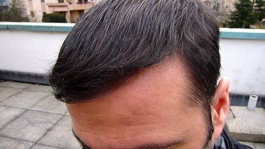 international hair loss forum dr keser turquie ankara 2100 fue. Black Bedroom Furniture Sets. Home Design Ideas